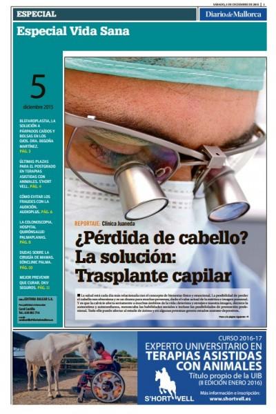 Doctor José María Mir en Diario de Mallorca. Injerto capilar