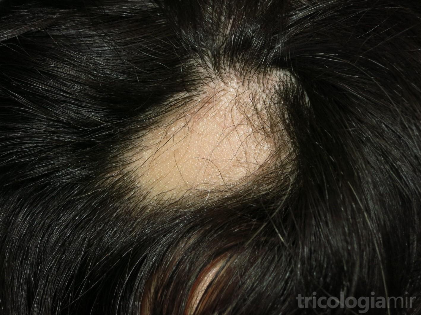 Placa única de alopecia areata