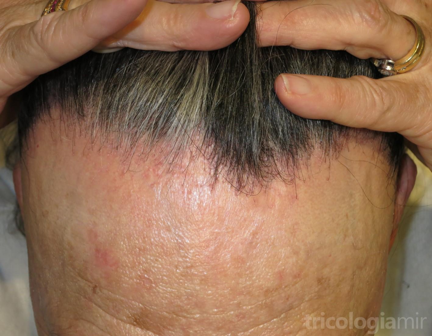 Alopecia Frontal Fibrosante Tricologia Y Trasplante Capilar Mir
