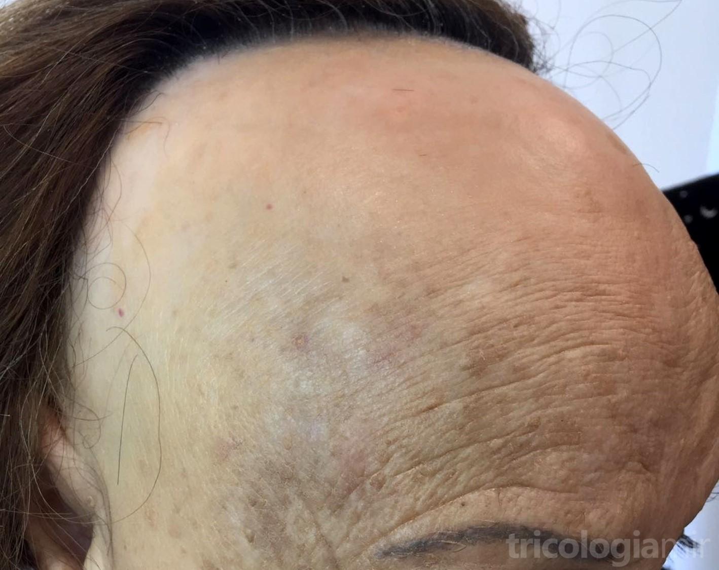 AFF avanzada con retraso muy importante de la línea de implantación y pérdida de cejas