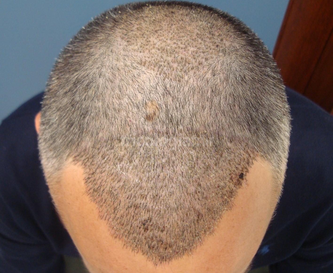 Zonas receptoras (frontal y coronilla) tras 6 días de la intervención