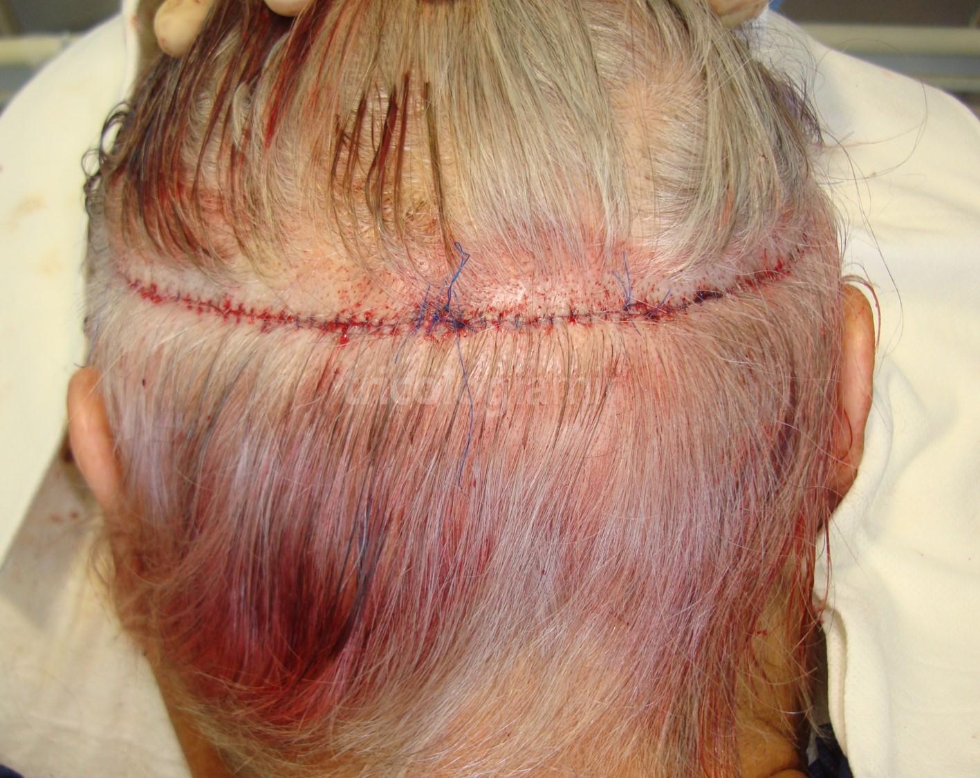 Extracción mediante técnica FUSS, se realiza una fina sutura continua para cerrar el defecto provocado por la tira