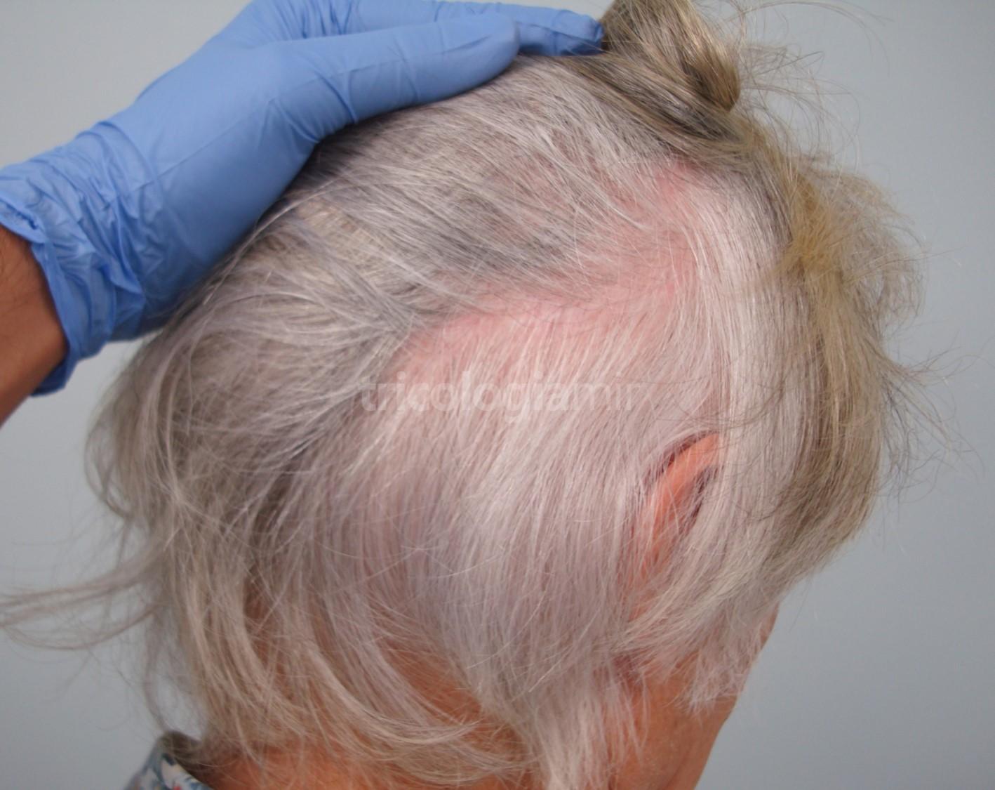 Se observa la cicatriz de la tira prácticamente imperceptible a los 12 meses de la intervención