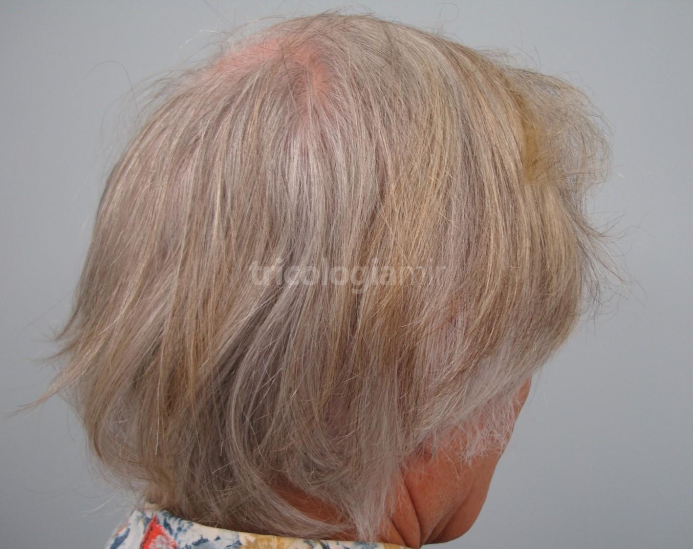El pelo cubre totalmente la cicatriz, quedando totalmente invisible