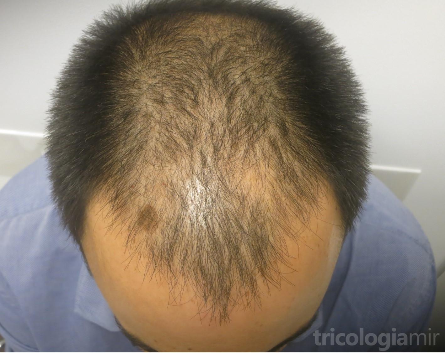 MAGA grado IV antes de realizar tratamiento