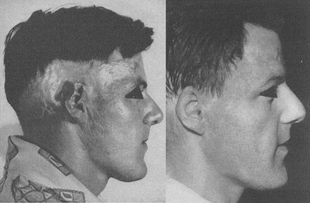 Primeras cirugías reconstructivas de alopecias cicatriciales por quemaduras mediante colgajos de piel pilosa.