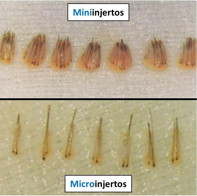 A partir de los años 80 se introdujeron los miniinjertos (arriba) y los microinjertos (abajo).