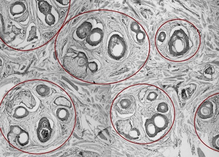 Imagen histopatológica de un corte transversal de la piel donde se observan las unidades foliculares y el perifolículo.