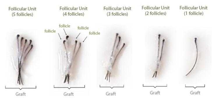 Unidades foliculares de 1 a 5 folículos.