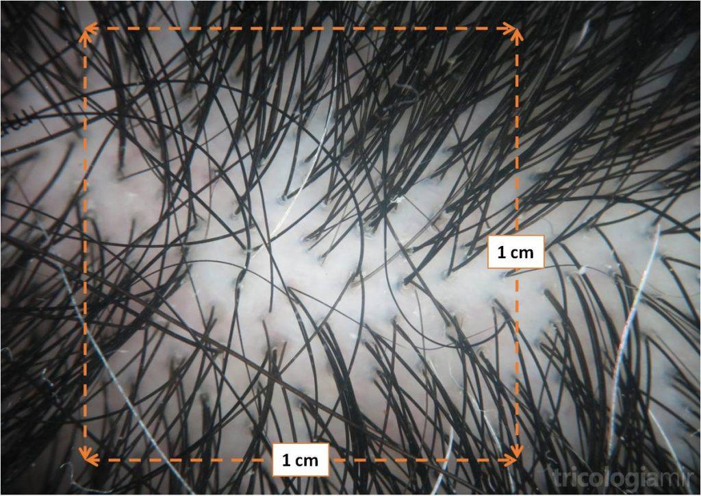 Tricoscopia de cuero cabelludo normal donde observamos una densidad de 80 UF/cm2