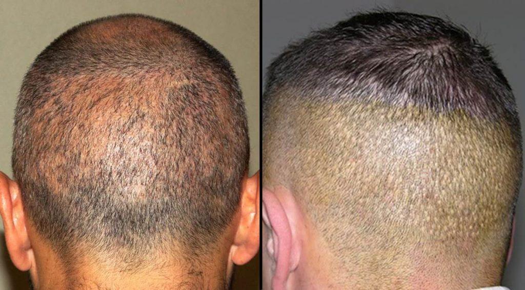 Alopecia apolillada por sobreexplotación de zona donante (izquierda) y white dots por utilización de punch demasiado grande (derecha).