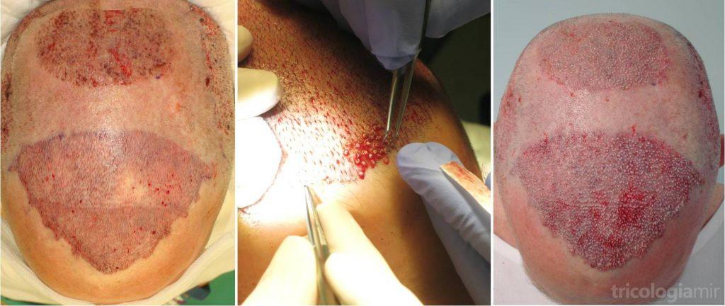 Una vez realizadas todas las incisiones, procedemos a la implantación una a una de las UF según el diseño y la distribución decididas. Remarcar en la foto de la derecha las pequeñas irregularidades de la zona frontal para aportar mayor naturalidad.