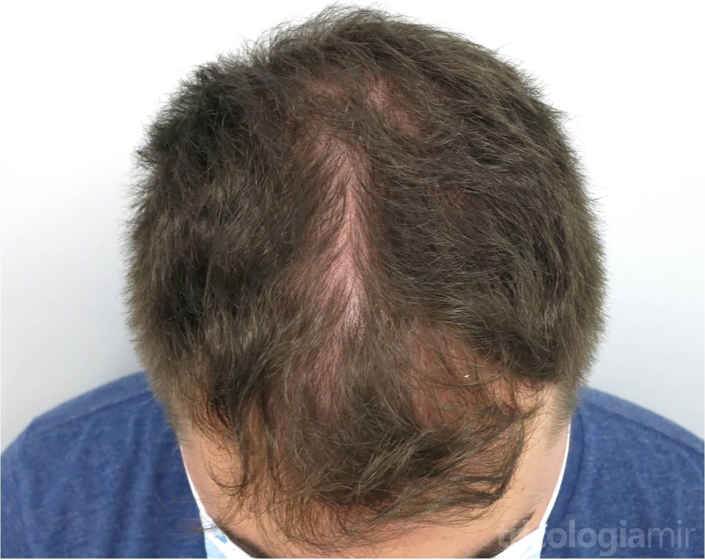 MAGA III previa a tratamiento con Minoxidil oral