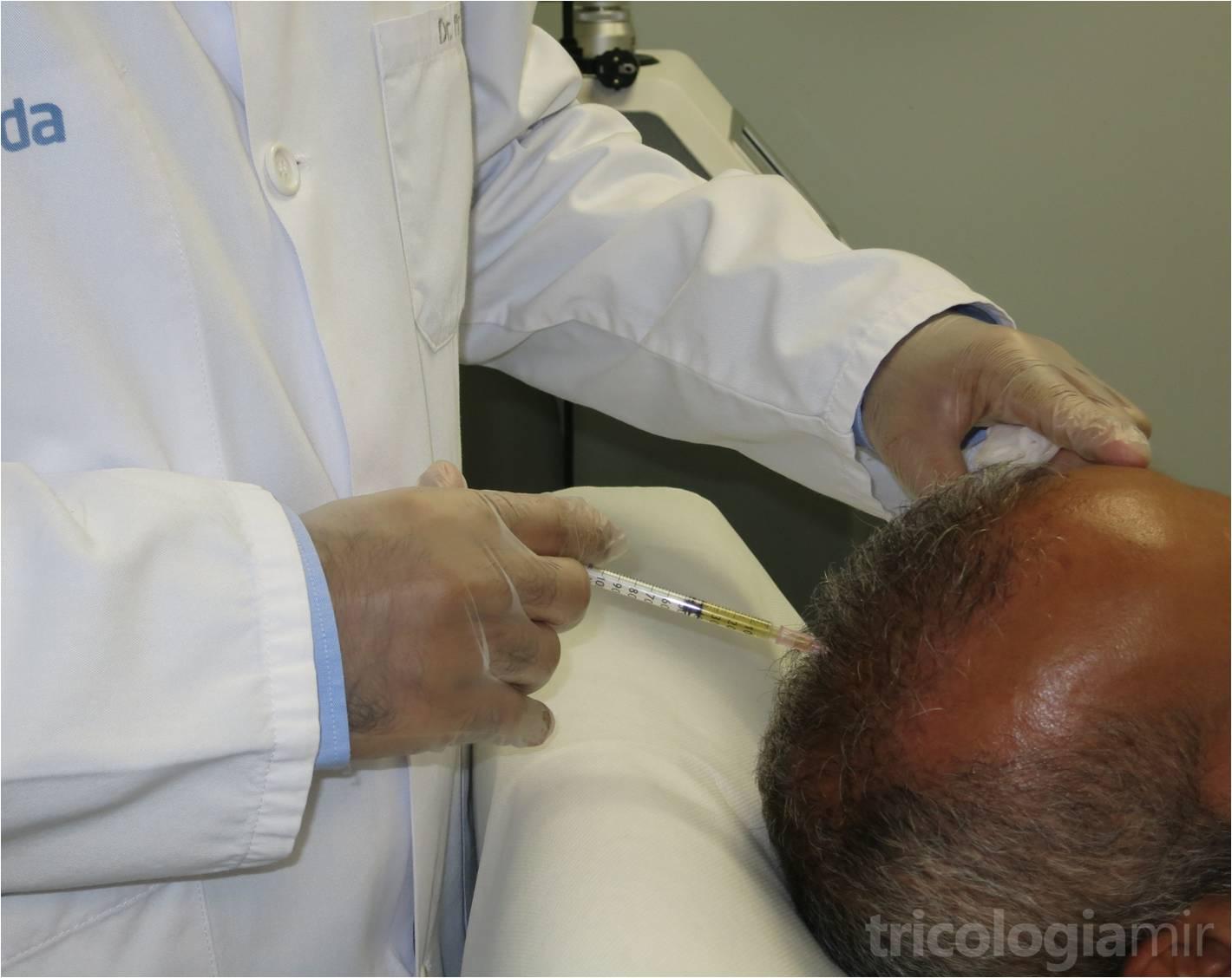 Aprovechamos el plasma rico en plaquetas para infiltrar directamente sobre el cuero cabelludo