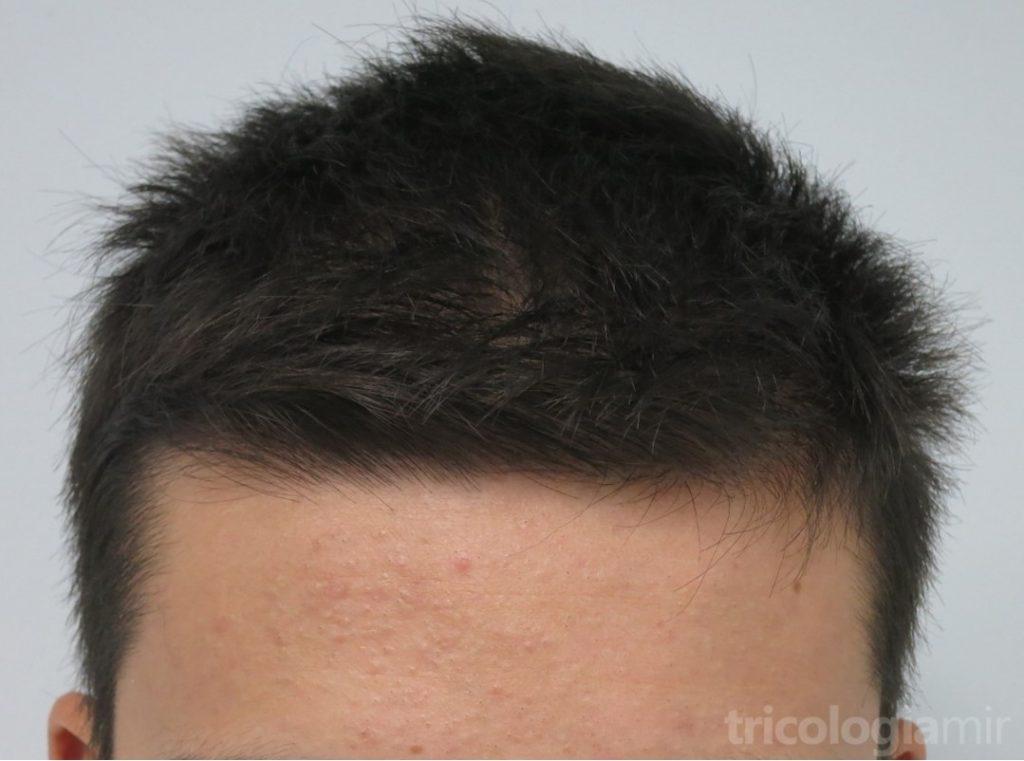 """Caso de varón joven con alopexia: importante preocupación con pelo """"normal"""""""