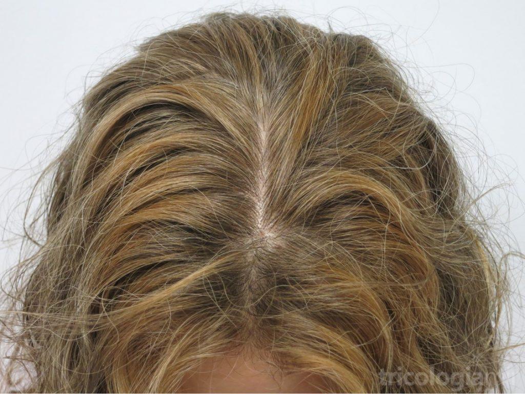 """Mujer de mediana edad con alopexia: importante preocupación con pelo """"normal"""""""