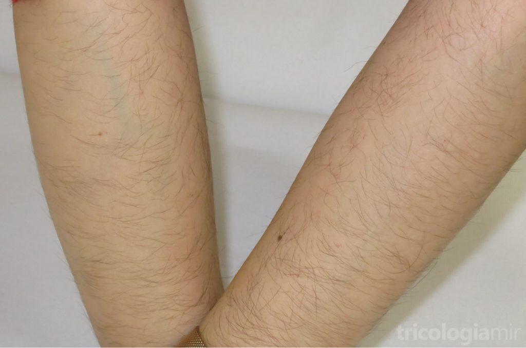 Hipertricosis localizada en brazos en una mujer joven en tratamiento con minoxidil oral 0,75mg/día