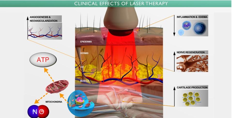 Mecanismos biológicos de acción de la terapia láser de baja potencia.