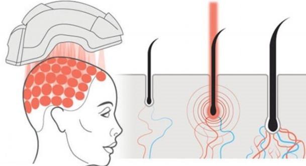 La terapia láser de baja potencia mejora microcirculación capilar, aumentando el grosor del pelo.