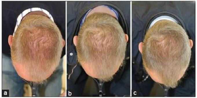 Mejoría de un paciente con alopecia androgenética tras 16 semanas de tratamiento con láser de baja potencia.