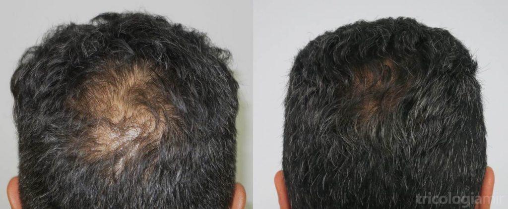 Caso 1. Varón de mediana edad con alopecia en vértex donde se observa repoblación importante tras 2 sesiones de mesoterapia de dutasteride.