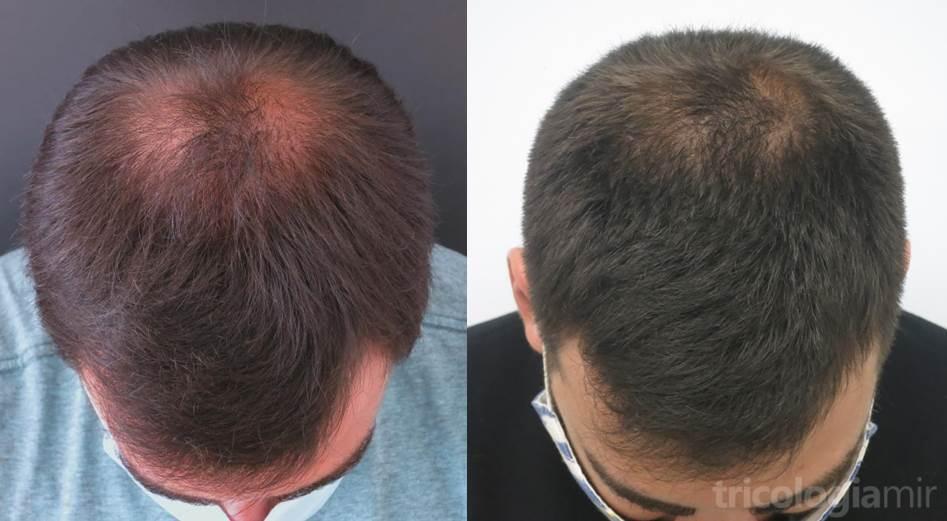 Caso 2 (visión superior). Varón joven con repoblación notable de vértex tras 1 sola sesión de mesoterapia de dutasteride.