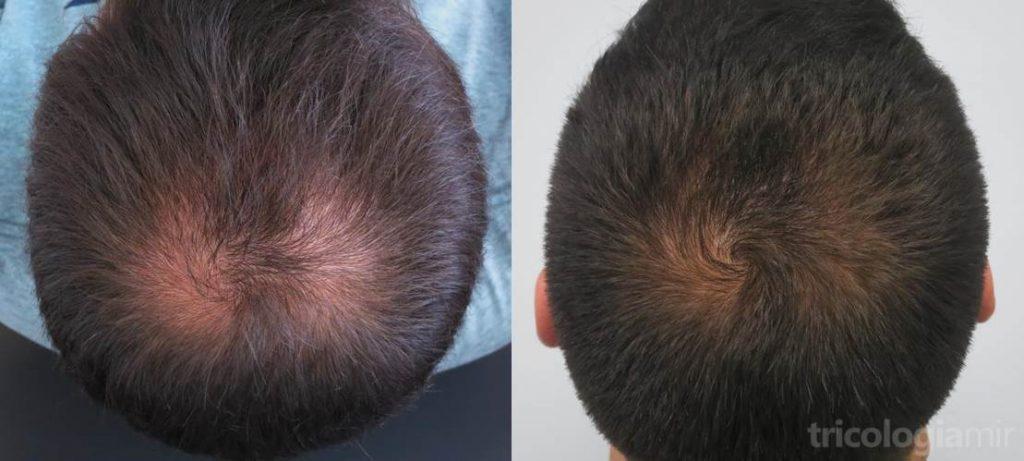 Caso 2 (visión posterior). Varón joven con repoblación notable de vértex tras 1 sola sesión de mesoterapia de dutasteride.