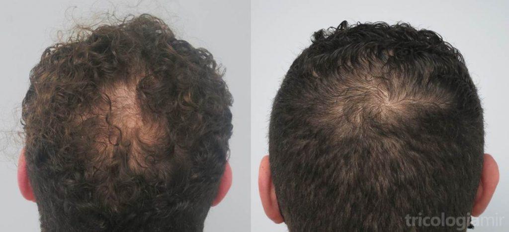 Caso 3. Varón de mediana edad con repoblación significante de coronilla tras 3 sesiones de mesoterapia de dutasteride.