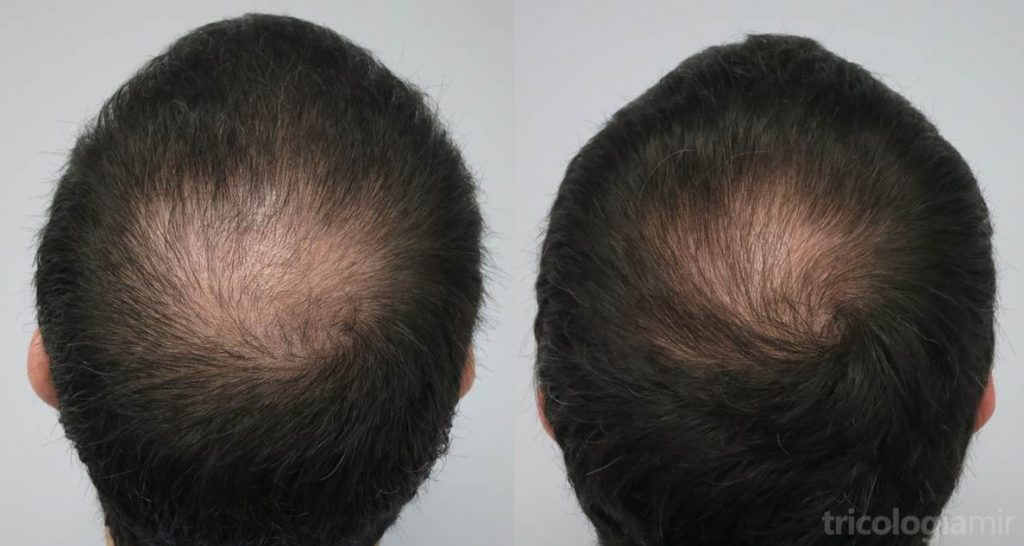 Caso 4 (visión postero-superior). Varón joven con alopecia vértex avanzada que conseguimos repoblar de manera parcial tras 3 sesiones de mesoterapia de dutasteride.