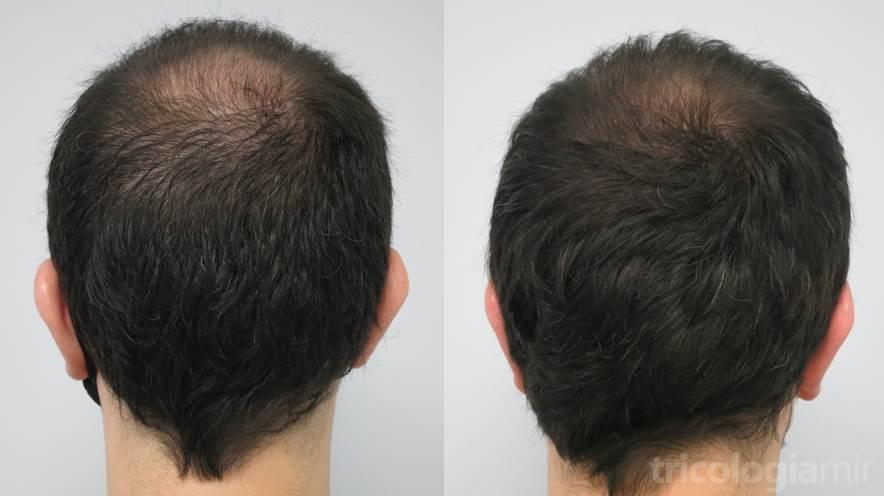 Caso 4 (visión posterior). Varón joven con alopecia vértex avanzada con cambio notable tras 3 sesiones de mesoterapia de dutasteride.